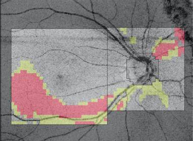 視神経繊維