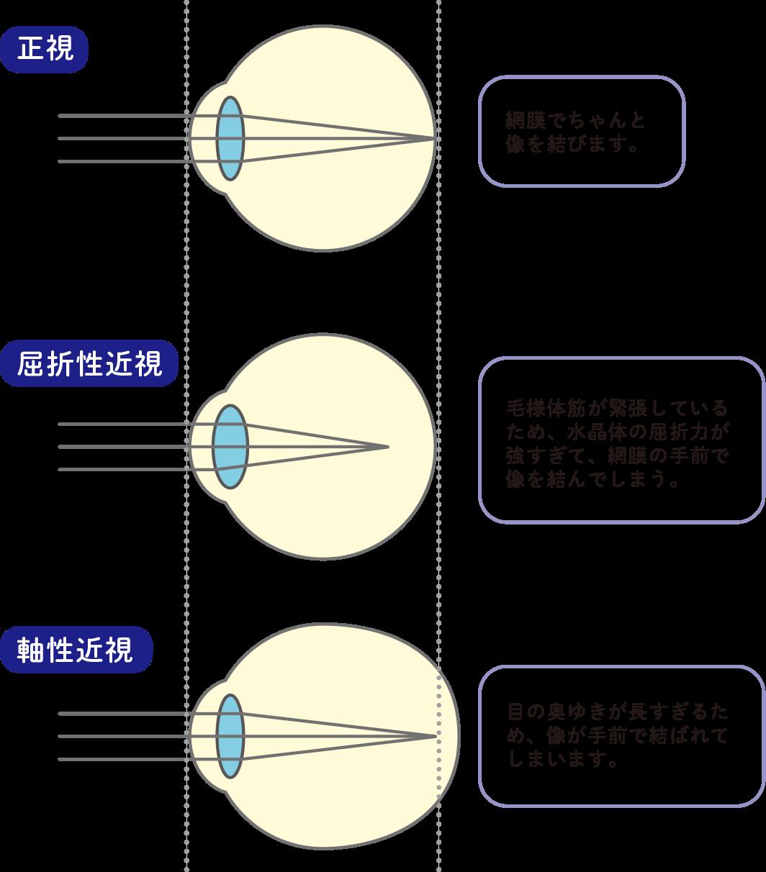 近視の種類