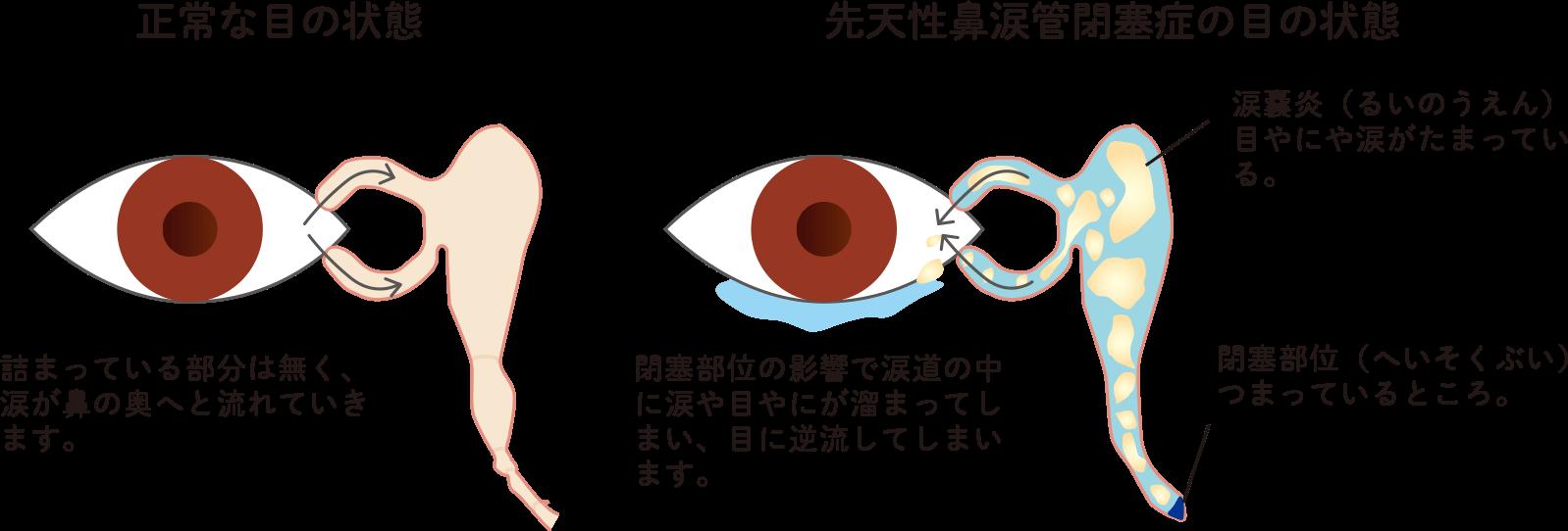 先天性鼻涙管閉塞症